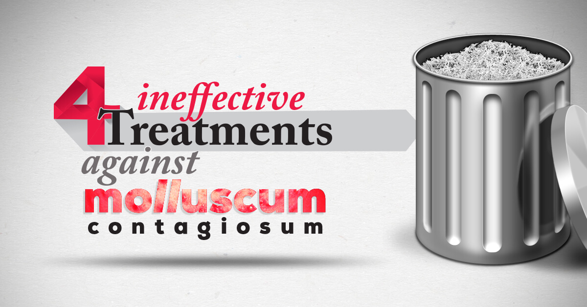 4 Treatments Ineffective Against Molluscum Contagiosum