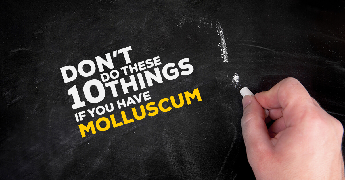 What Not To Do Do When You Have Molluscum