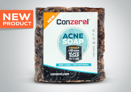 Conzerol® Acne Soap – Real African Black Soap