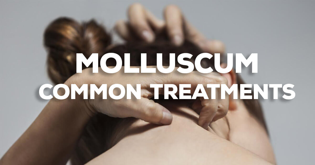 Common Treatments For Molluscum Contagiosum