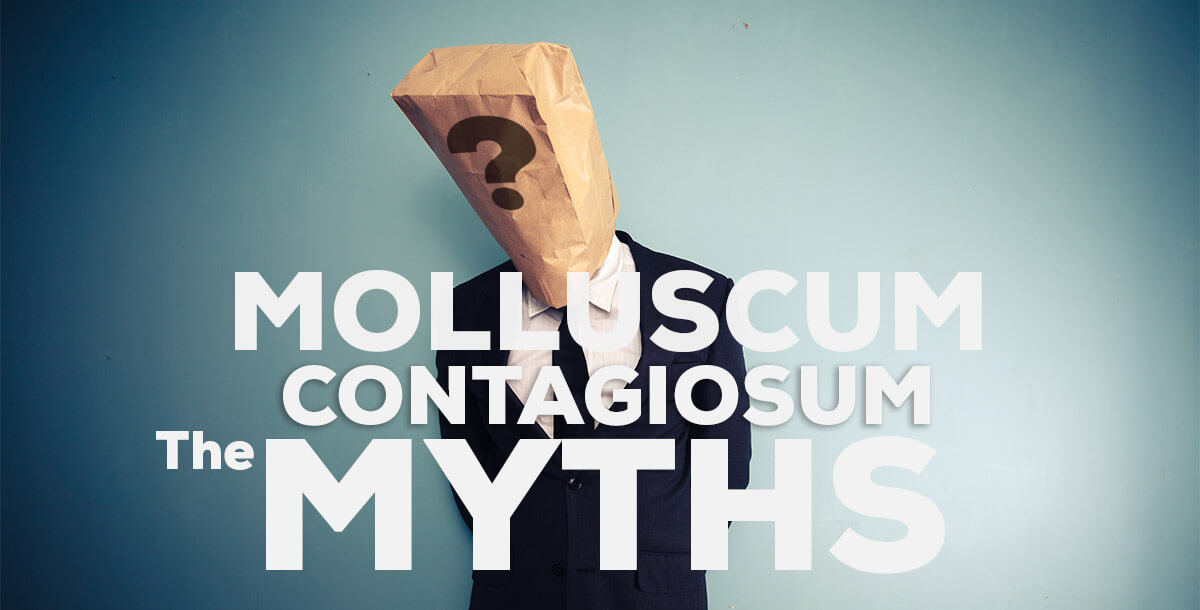 Myths About Molluscum Contagiosum