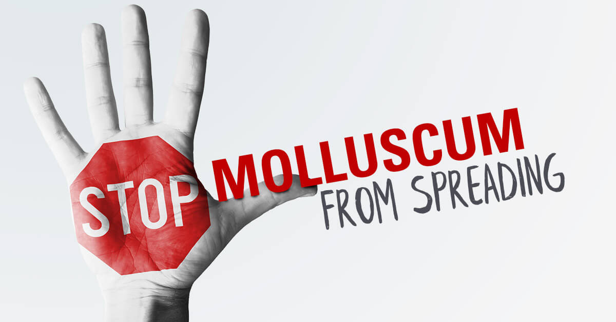 How To Stop Molluscum Contagiosum From Spreading To Other Parts Of Your Body Or To Family Members