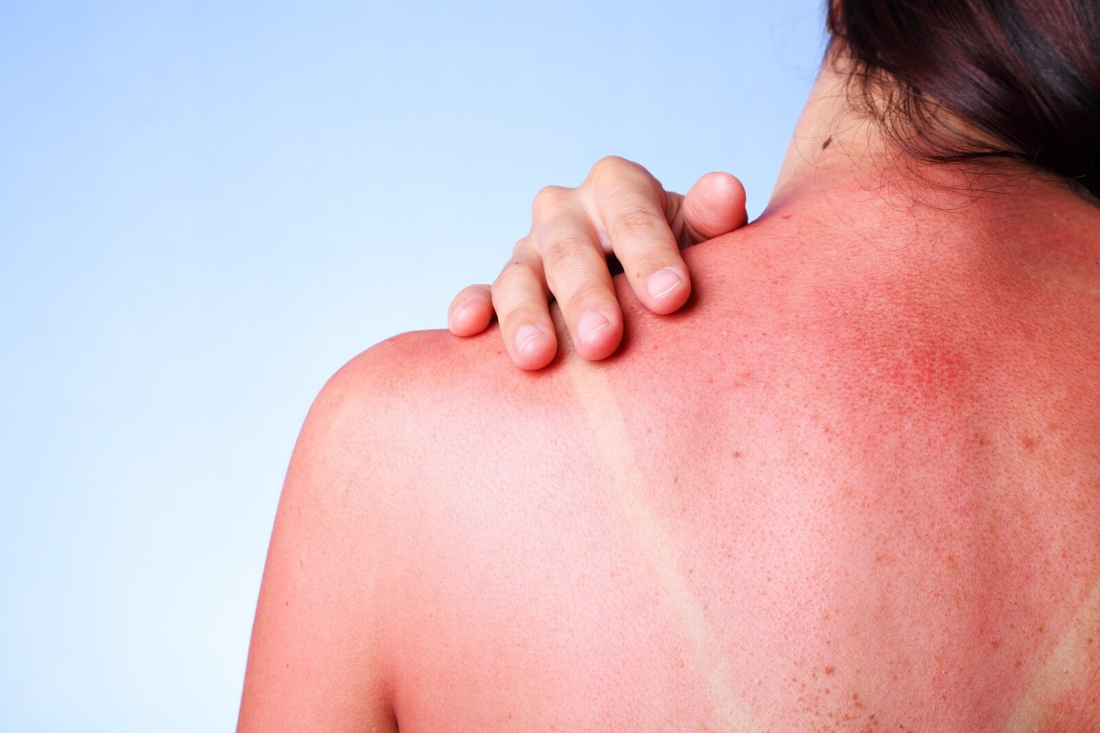 Sunburn Risks